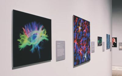 Exposición Neurología A Coruña